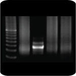 PCR-amplification of normal B cell DNA gives a polyclonal smear. B cells derived from the activation of a single clone show only one band of DNA.